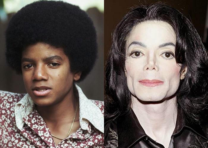 Возраст, ракурс или ринопластика: 10 звёзд-мужчин, чьи носы изменились - Майкл Джексон