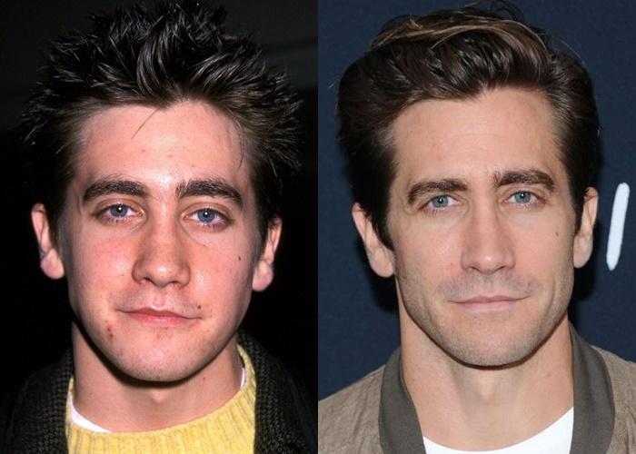 Возраст, ракурс или ринопластика: 10 звёзд-мужчин, чьи носы изменились - Джейк Джилленхолл