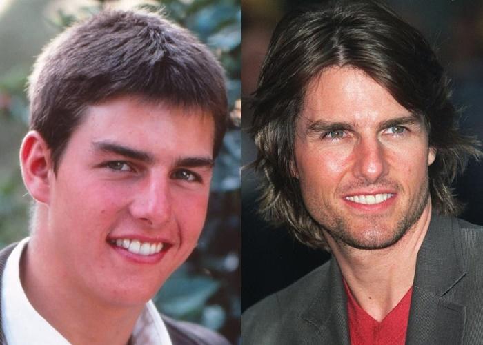Возраст, ракурс или ринопластика: 10 звёзд-мужчин, чьи носы изменились - Том Круз