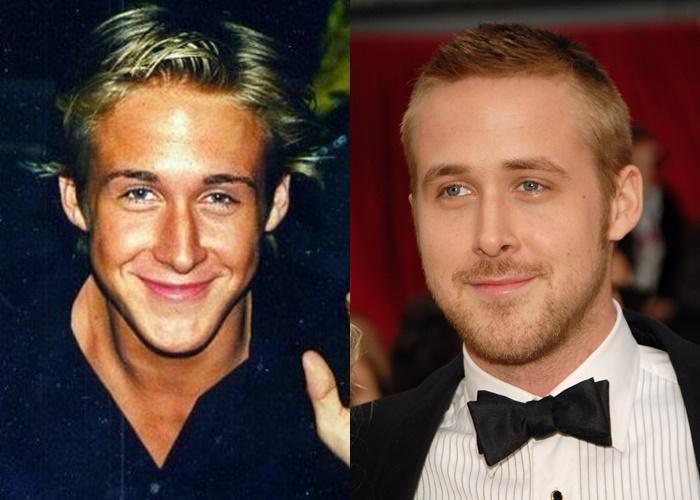 Возраст, ракурс или ринопластика: 10 звёзд-мужчин, чьи носы изменились - Райан Гослинг